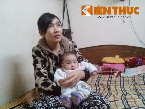 Em bé khong hạu mon phãu thuạt 4 làn trong 8 tháng