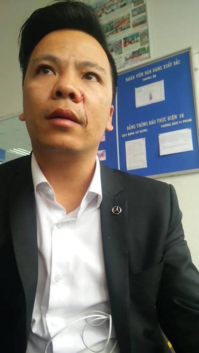 Bi to hanh hung khach hang, Isuzu Long Bien noi gi?-Hinh-2