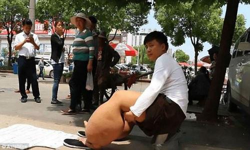 Bi chung chan voi nang 150 kg chi vi bi... muoi dot