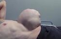 Kinh hãi người đàn ông có ruột phình to như quả bóng ở bụng
