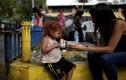 Chùm ảnh bữa ăn từ thiện cho dân nghèo Venezuela