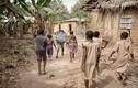 Cơ cực những đứa trẻ đáng thương ở Châu Phi