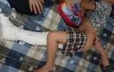 Mong mỏi của phụ huynh học sinh gãy chân ở trường Nam Trung Yên