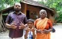"""Hứng chịu """"lời nguyền"""", đại gia đình Ấn Độ sinh ra với bàn tay nhện"""