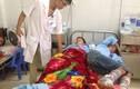 Thanh Hóa: 75 người bị bỏng nhập viện vì đốt lửa trại
