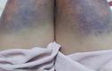 Cô gái tố bị bạn trai Hà Nội nhốt, đánh đập bằng gậy sắt