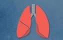 Video: 10 thực phẩm ngăn ngừa nguy cơ ung thư phổi