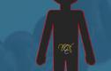 Video: Bỏ túi những lưu ý khi tẩy giun cho trẻ