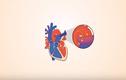 Video: Bệnh tim bẩm sinh có thể tự hồi phục