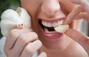 Video: Mẹo giảm đau răng nhanh nhất tại nhà