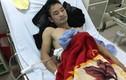 Khởi tố hai đối tượng đâm trọng thương người cứu cô gái bị tai nạn