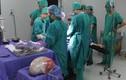 Phẫu thuật thành công khối u nang buồng trứng hơn 6,6 kg