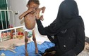 Xót xa chùm ảnh về nạn đói khủng khiếp ở Yemen