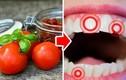 """Đây là """"khắc tinh"""" gây hại răng cần cân nhắc trước khi dùng"""