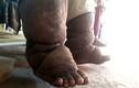 Người đàn ông không đứng nổi trên đôi chân của mình