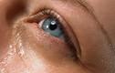 Nước mắt chảy nhiều, chứng tỏ bạn đang có bệnh