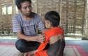 Xót xa bé gái 5 tuổi mọc lông như 'người rừng' ở Nghệ An