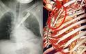 Cứu sống bệnh nhân bị dao đâm xuyên ngực thủng phổi