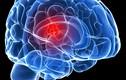 Nhận diện dấu hiệu ung thư não theo từng giai đoạn