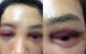 Cắt mí mắt hỏng: Người bảo lãnh cho nạn nhân bị nhắn tin đe dọa