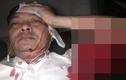 Giám đốc nhân sự tập đoàn cà phê Trung Nguyên bị đâm