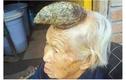 """Cụ bà mọc """"sừng"""" như kỳ lân kỳ lạ ở Trung Quốc"""