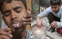 """Cậu bé """"dị nhân"""" Ấn Độ chịu được điện áp 11.000V"""