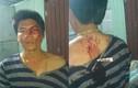 Con rể tố bị người nhà vợ hành hung dã man ở Bình Dương