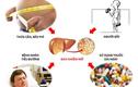 Nghiên cứu về sự nguy hiểm của bệnh gan nhiễm mỡ