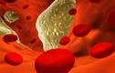 Bệnh máu nhiễm mỡ có nguy hiểm không?