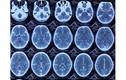 Đau đầu thiếu nữ bất ngờ phát hiện dị dạng mạch não