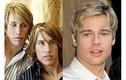 Anh em sinh đôi phẫu thuật để giống Brad Pitt và cái kết