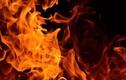 TP HCM: Bị chia tay, nam thanh niên tưới xăng đốt bạn gái