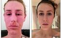 Mỹ nữ bị biến dạng toàn thân vì dùng kem trị eczema