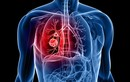 10 bệnh ung thư gây chết người nhiều nhất thế giớii
