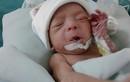 Phẫu thuật cứu trẻ 1,4kg mắc tim bẩm sinh
