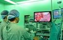 Nội soi điều trị ung thư dạ dày