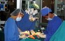 Nội soi kết hợp xương lồi cầu tránh liệt thần kinh