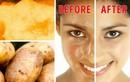 8 công thức mặt nạ tự nhiên giúp da mặt sáng mịn