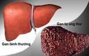 Phương pháp phát hiện sớm ung thư gan không sinh thiết