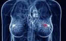 Kinh nghiệm sống còn của bệnh nhân u vú suốt 26 năm