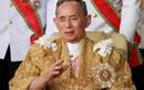 Bệnh não úng thủy của Quốc vương Thái Lan có dấu hiệu gì?