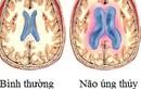 Bí ẩn căn bệnh não úng thủy của Quốc vương Thái Lan