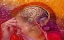 Cách điều trị bệnh thiếu máu não, suy nhược thần kinh