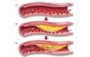 Xơ vữa động mạch liên quan gì thiếu máu não?
