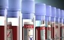 Rúng động sản phụ 9 lần bị chẩn đoán nhầm nhiễm HIV