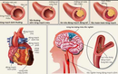 Mối liên quan giữa tăng huyết áp và rối loạn mỡ máu