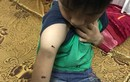 Video: Bé 9 tuổi nghi bị bố bạo hành chỉ rõ từng vết thương trên cơ thể