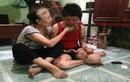 Nỗi đau tột cùng của người vợ trẻ bị chồng tẩm xăng thiêu sống