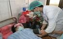 HN: Đã có hơn 700 trường hợp mắc sốt xuất huyết